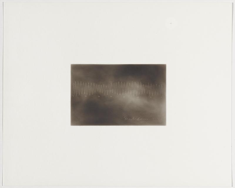 smokey grey background; zigzagging slightly irregular white line; numbers beneath line: 5, 30, 25, 20, 113, 10, 5, 1